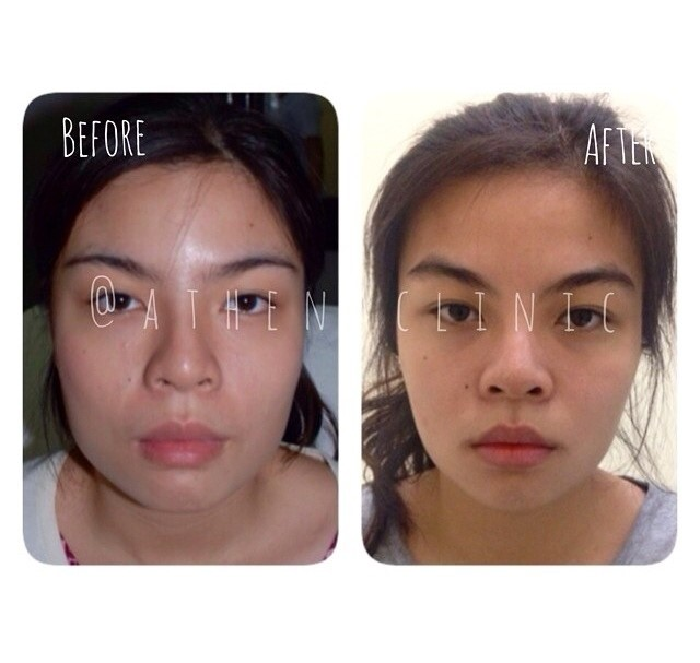 Does weight loss cause under eye bags photo 3